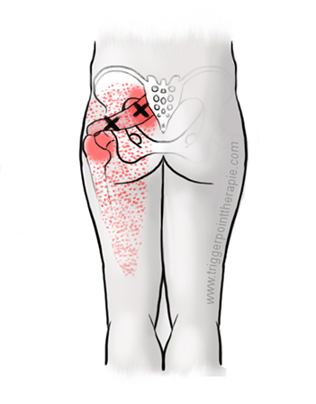 http://www.triggerpointtherapie.com/files/triggerpointtherapie/Triggerpoint%20uitleg/Piriformis.jpg